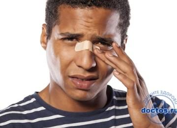 Перелом носа степень тяжести вреда здоровью: если сломанный со смещением костей, какой вид наказания ждет?